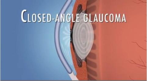 close angle glaucoma